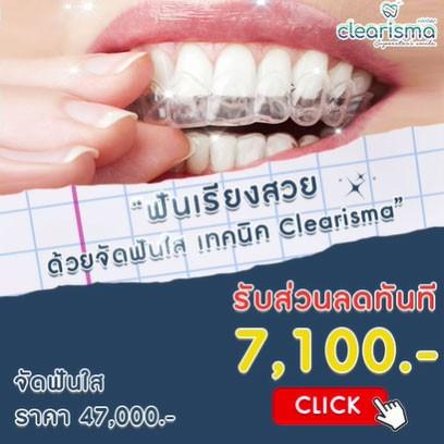 จัดฟันใสราคา